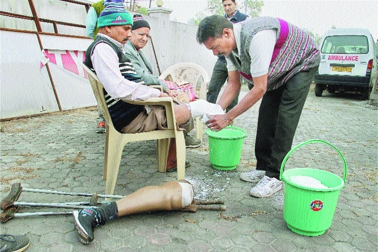 Person gets free prosthetic limb artificial limb camp in Jammu