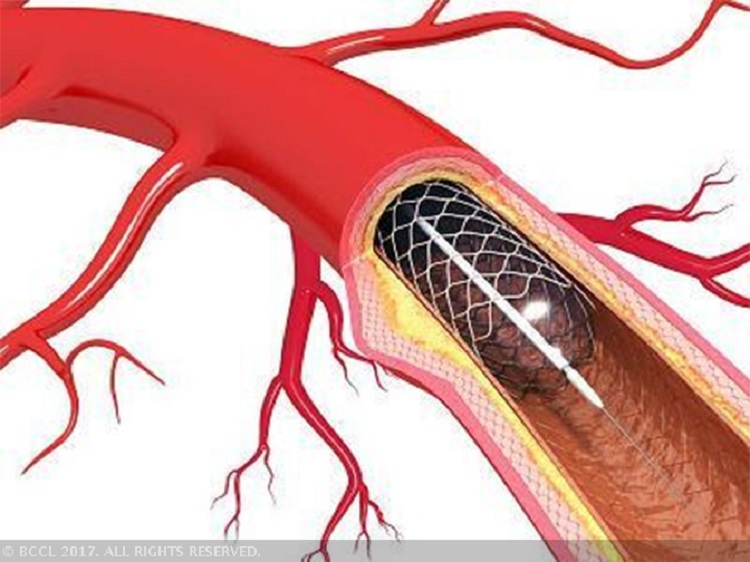 NPPA asks stent makers, importers to submit price list by March 1