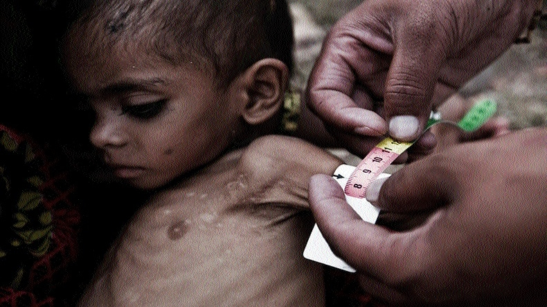 Opposition to demand white paper on malnutrition in Monsoon Session