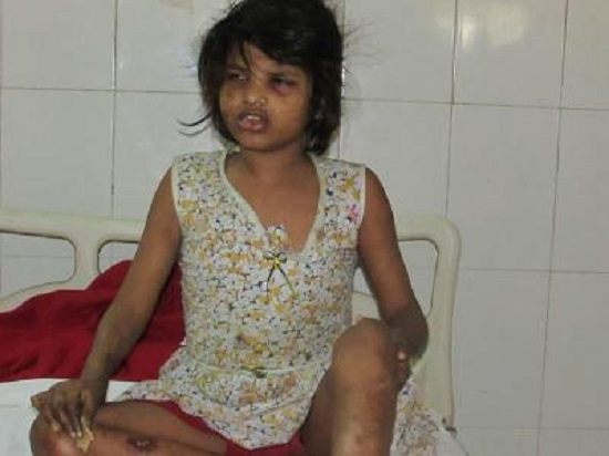 8-year-old girl found living with monkeys