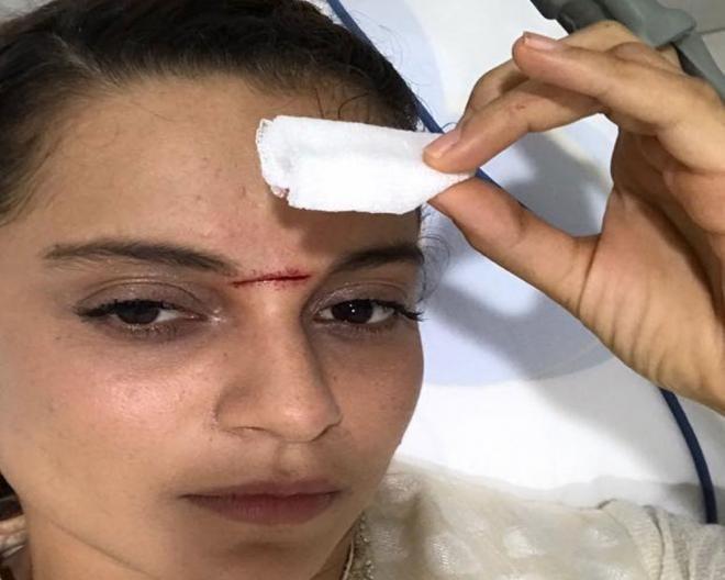 Kangana Ranaut injured on 'Manikarnika' set