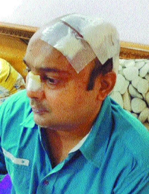 Businessman injured in brawl at CP Club during Diwali bash