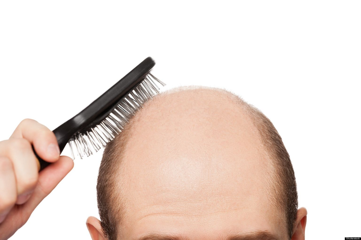 IS HAIR TRANSPLANT an affordable solution?
