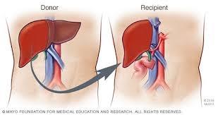 Liver transplant through live donor