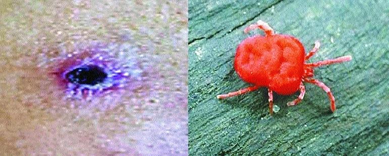 Tropical rat mite also causes Scrub Typhus