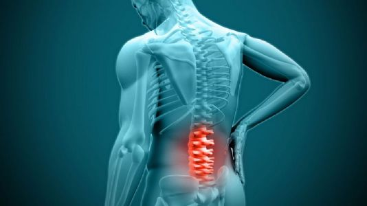 Ozone Therapy For Treating Backache
