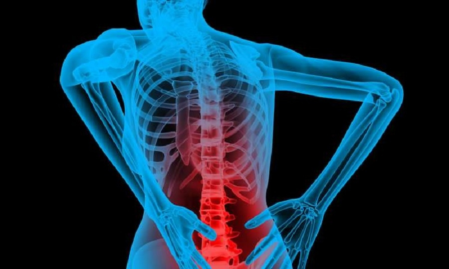 Diagnosis & management of SPINAL TB - The Hitavada